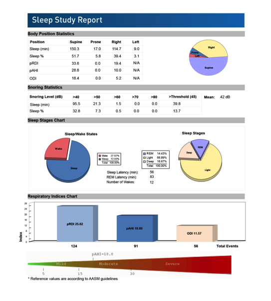 Sleep Study Report 2