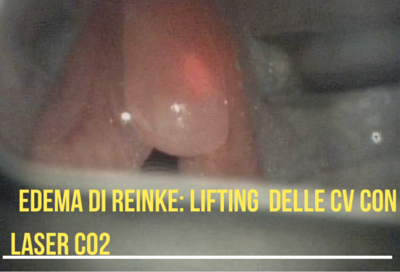 Edema di Reinke Lifting Laser CO2